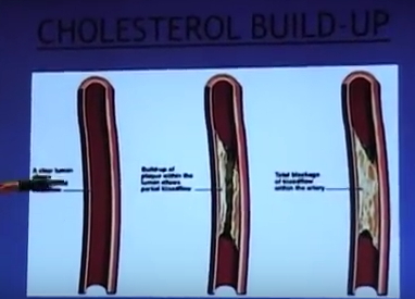 The Truth About Cholesterol