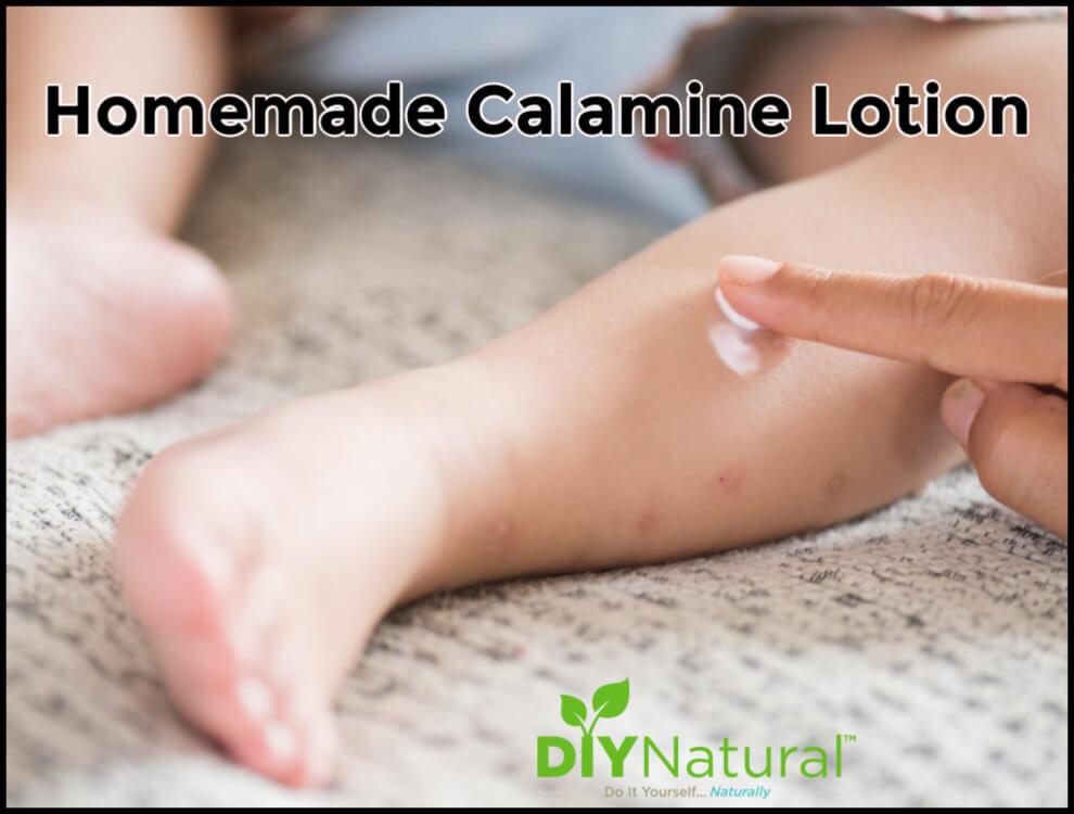 How to Make Natural Calamine Lotion at Home